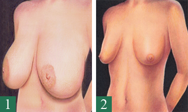 Bröstförminsking/Bröstlyft 1