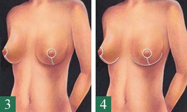 Bröstförminsking/Bröstlyft 2